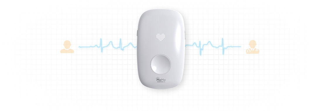 Cardiac monitor as IoT use case example